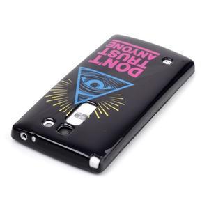 Soft gelové pouzdro na LG G4c - oko - 3