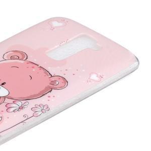 Fony gelový obal na mobil LG K10 - medvídek - 3