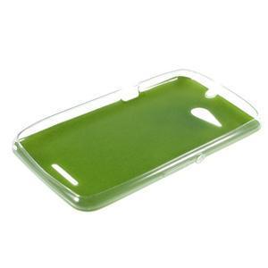 Gelový obal na Sony Xperia E4g s koženkovými zády - zelený - 3